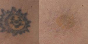 tattoo-removal-BA1