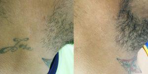 tattoo-removal-BA5