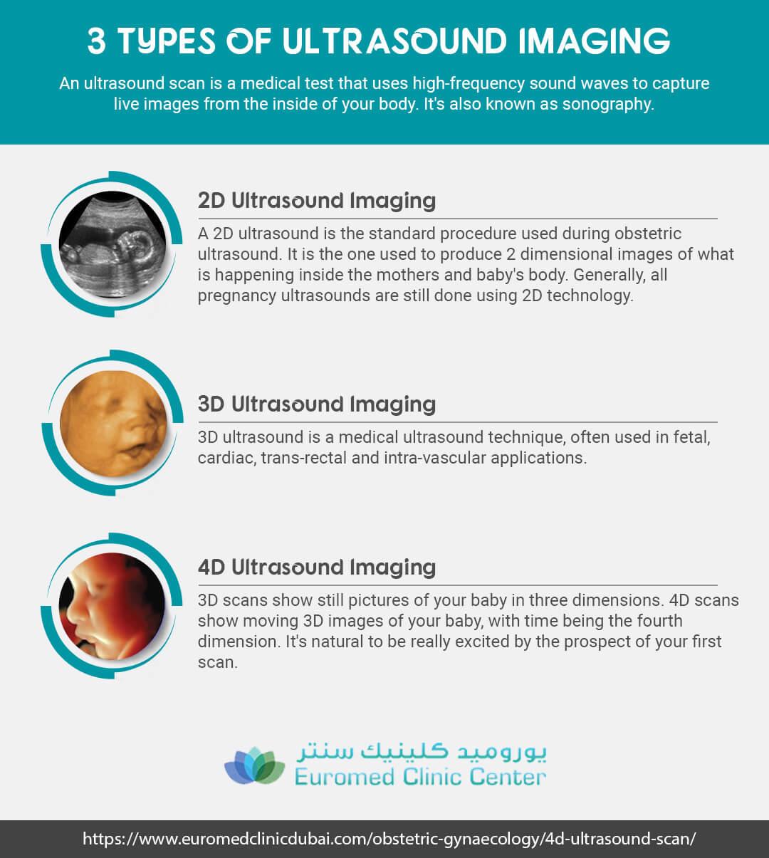 2D, 3D and 4D Ultrasound