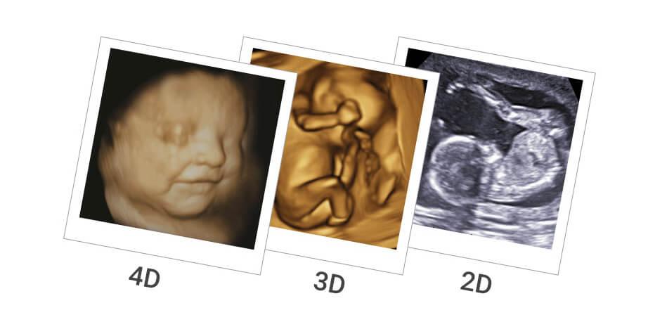 2D, 3D and 4D Ultrasounds