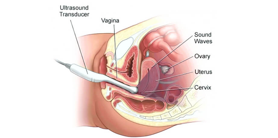 uterine polyps diagnosis