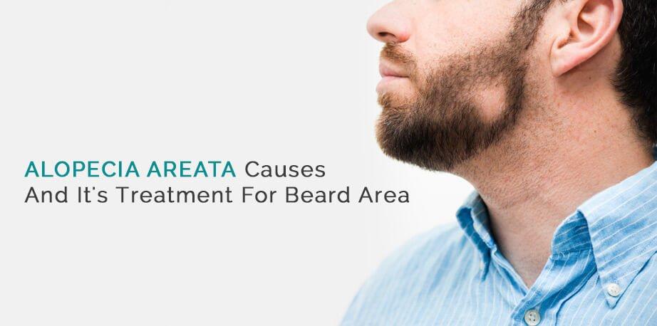 Alopecia Areata Causes And It's Treatment For Beard Area1