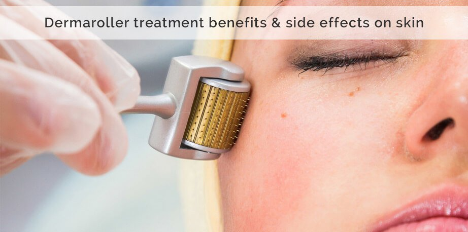 Derma Roller Treatment Benefits & Side Effects On Skin