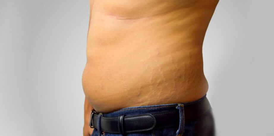 How To Remove Stretch Marks In Dubai?