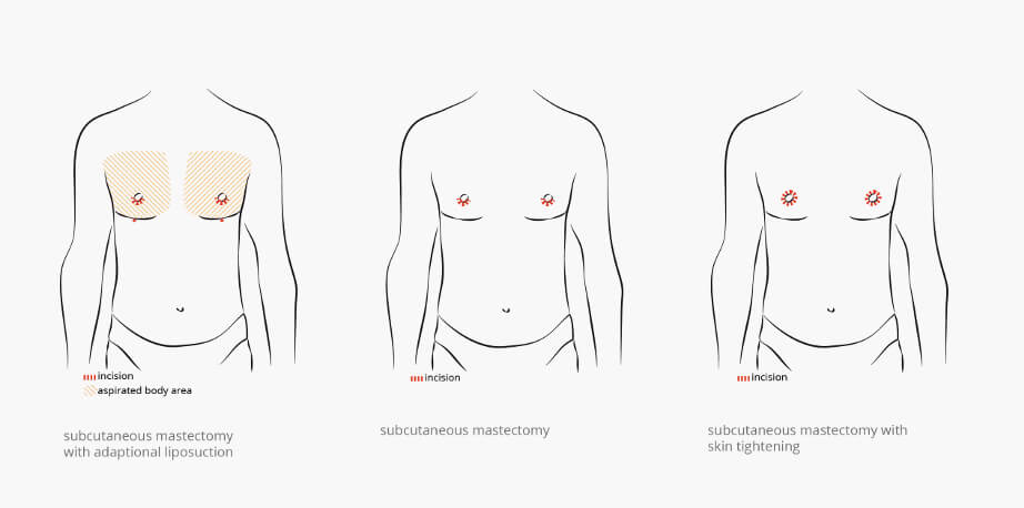 Benefits of Gynecomastia For Men And Boys