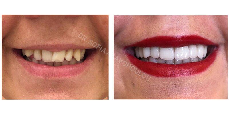 Dental Veneers Success Story by Dr. Sofia33