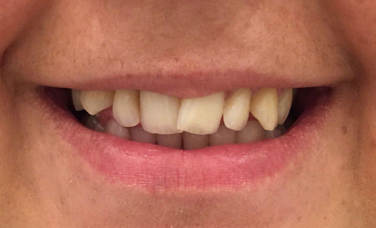 Dental Veneers Success Story by Dr. Sofia111
