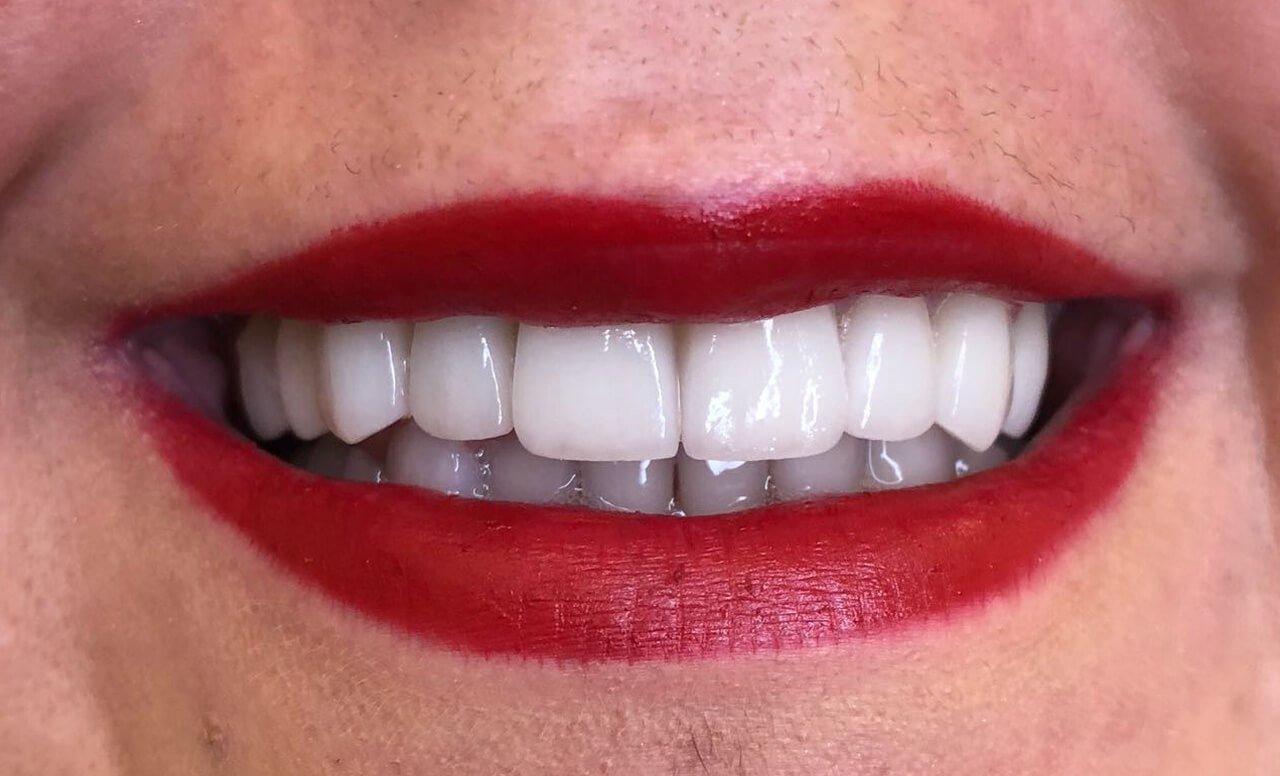 Dental Veneers Success Story by Dr. Sofia121