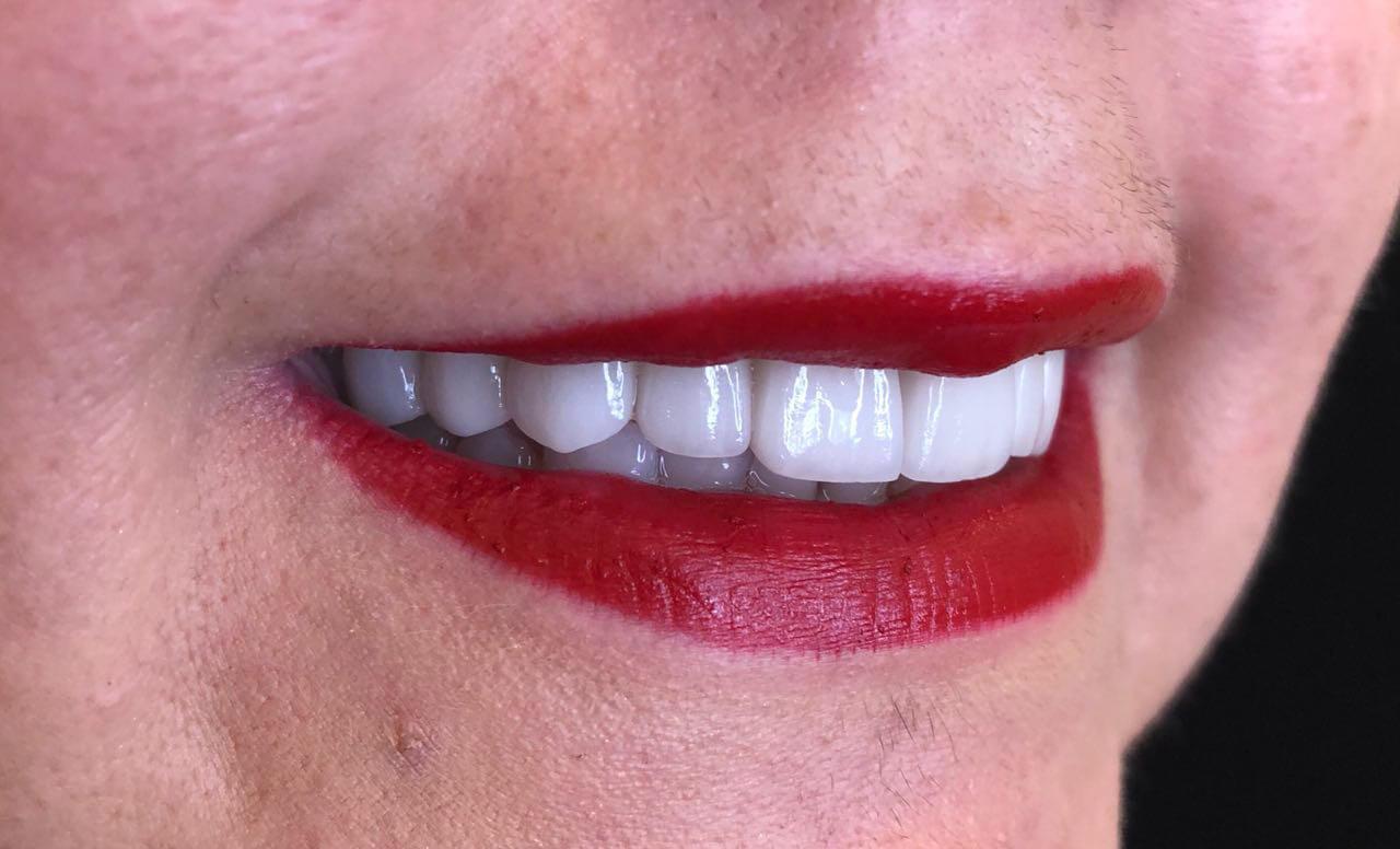 Dental Veneers Success Story by Dr. Sofia23