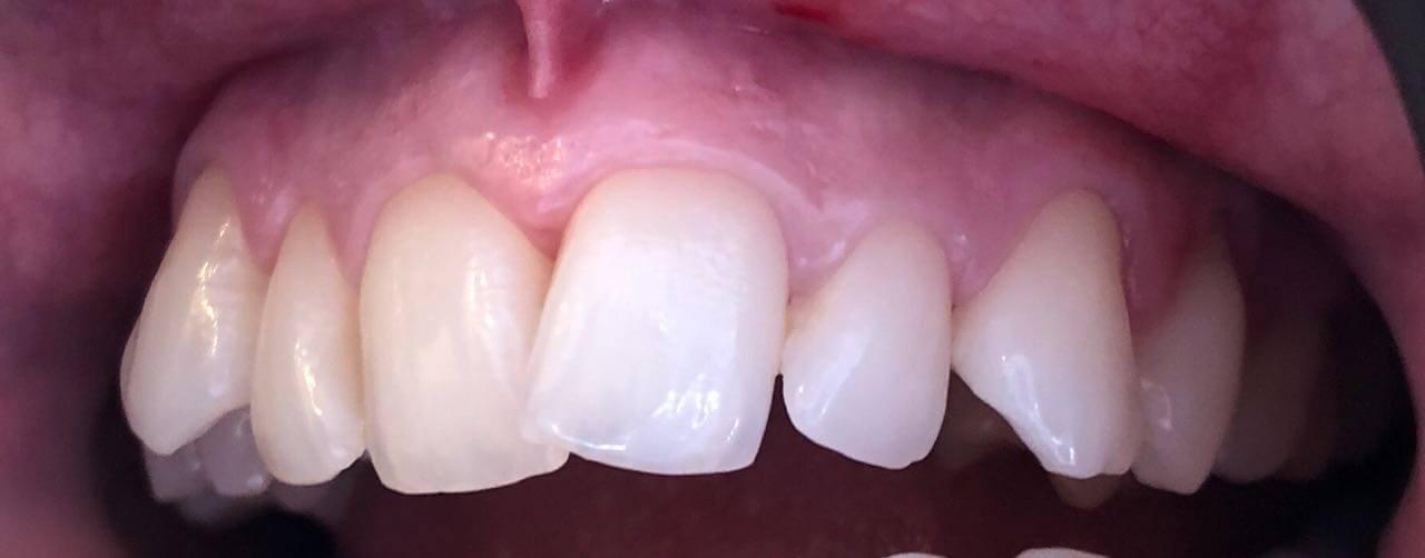 Dental Veneers Success Story by Dr. Sofia2