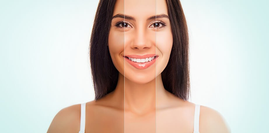 How Much Laser Skin Tightening Cost in Dubai