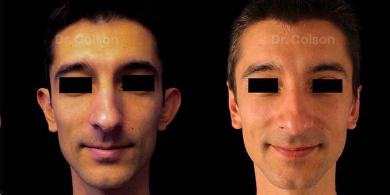 Otoplasty - Ear Surgery