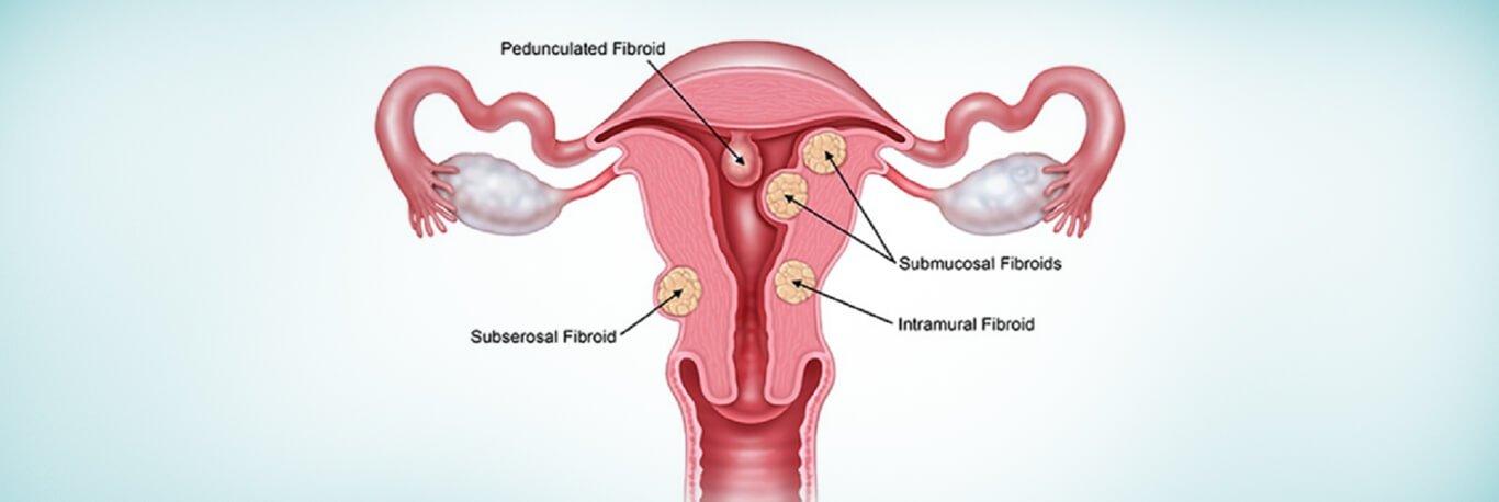 Uterine Polyps Diagnosis & Treatment in Dubai | Euromed® Clinic