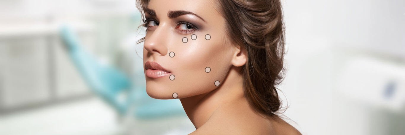 Eight Point Filler Facelift Dubai - Best 8 Points | Euromed