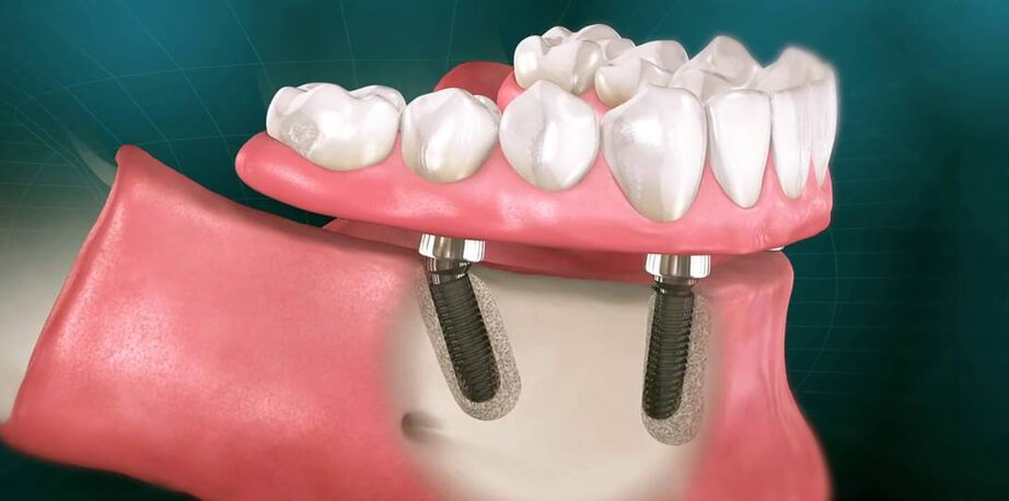 What is the Procedure Of Same Day Dental Implants & It's Cost