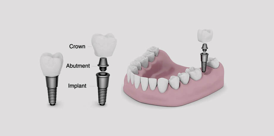 Same Day Dental Implants Procedure & Cost