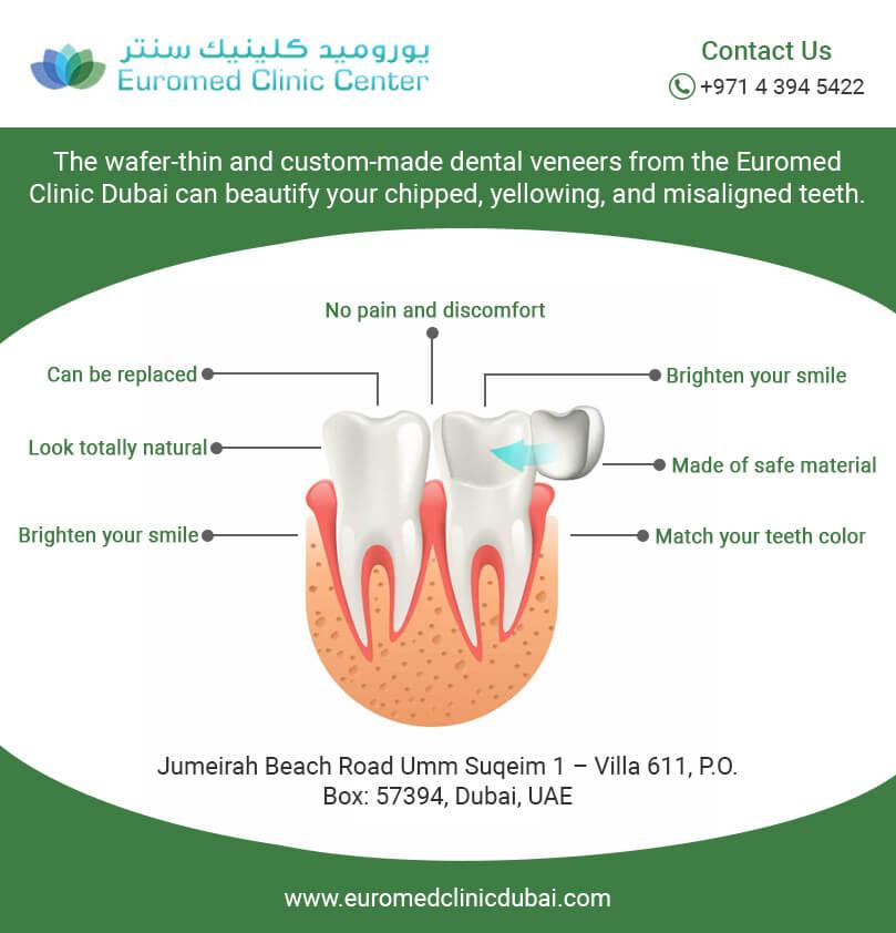 dental veneer Infografics