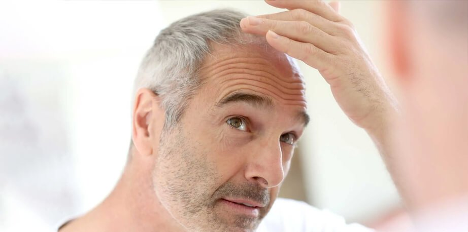 Blood Test for Hair Loss