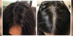hairloss12