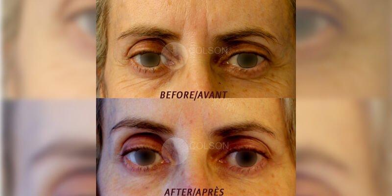 Botox-1-Face[1]