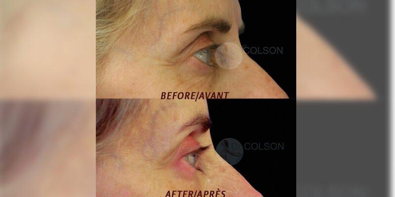 Botox-1-Profile[1]