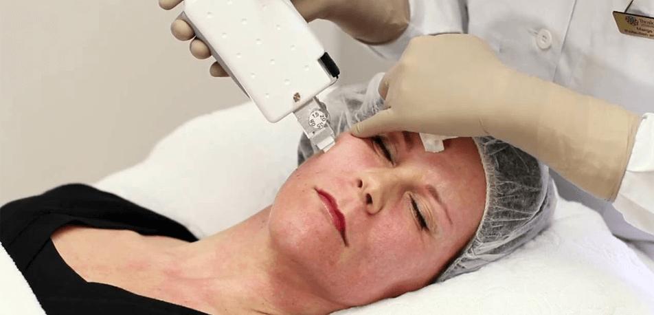 Fractional RF Treatment-small