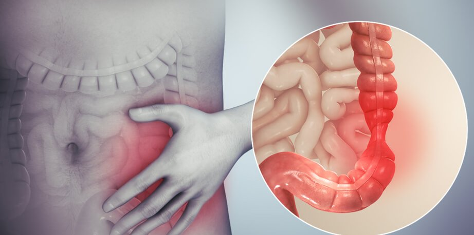 Gut Syndrome