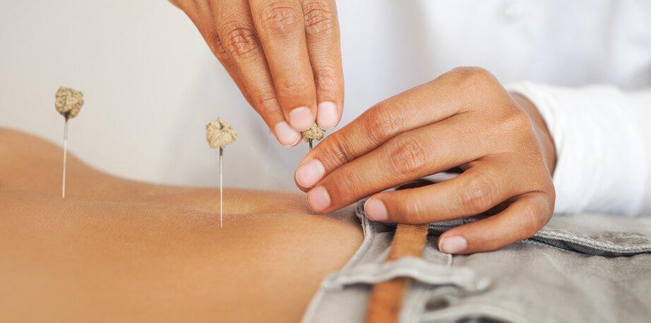 Acupuncture treat