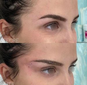 Canthoplasty before after (1)