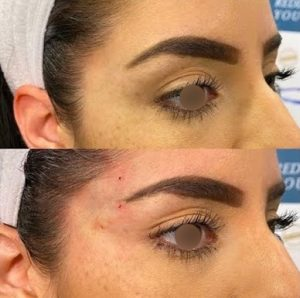 Cat eye lift before after (1)
