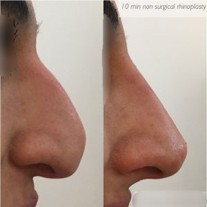 non-surgical-rhinoplastic-before-after-3 (1)