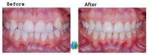 Invisalign-Braces-before-after (1)