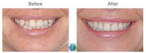 Invisalign-Braces-before-after (2)