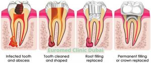 Root-Canal-procedure-explained-euromed