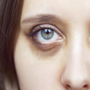 Under-Eye-Dark-Circles-Laser-Treatment
