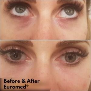 eyerejuvenationbeforeafter1